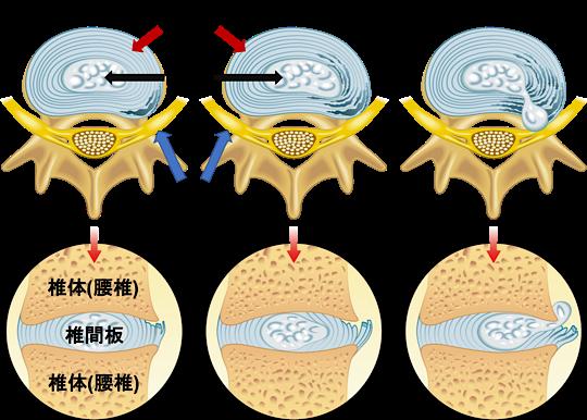 髄核が変性し神経を圧迫した腰椎椎間板ヘルニアの状態