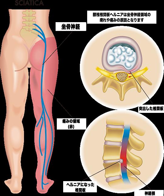 変性した髄核が神経を圧迫し坐骨神経領域に痛みが生じる